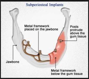 Dental Implants - Nairobi Dental Suite